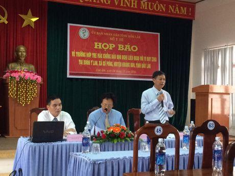 So Y te Dak Lak thong tin chinh thuc ve truong hop nhiem virus Zika - Anh 1