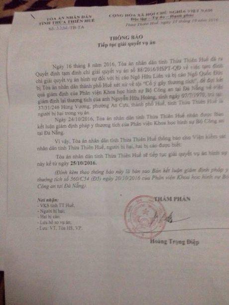 Toa an Nhan dan Thua Thien Hue: Su dung sai cum tu co ban khien noi dau cang them dau! - Anh 2