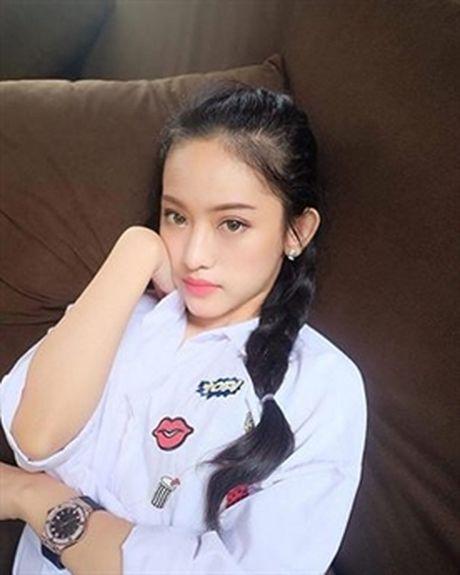 Can canh nhan sac Thuy Vi sau tin don tu tu, phau thuat tham my - Anh 6