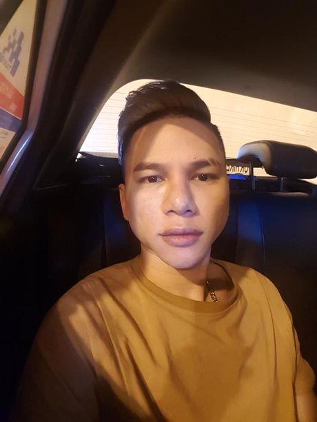 Vua cong khai 'dao keo' Hoang Ton da 'keu cuu' vi khuon mat bi loi - Anh 5