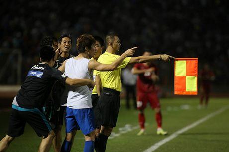 Tuyen Viet Nam 0-0 Avispa Fukuoka: Man trinh dien chap nhan duoc - Anh 2