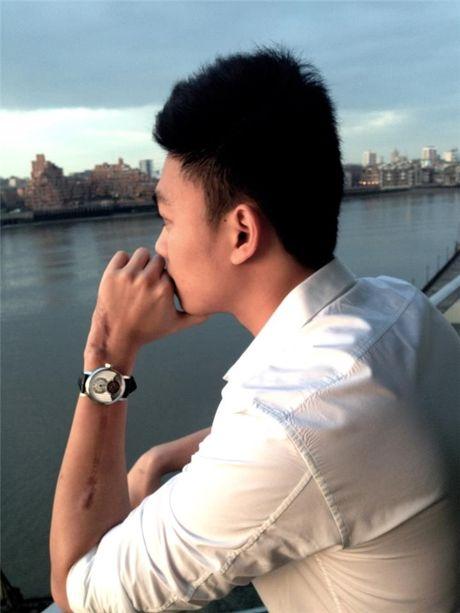 Khoi tai san kech xu cua ban trai tin don A hau Tu Anh - Anh 10