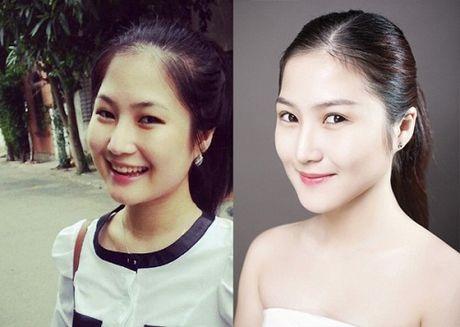 Khong con nhan ra Huong Tram truoc va sau khi thay doi nhan sac - Anh 3