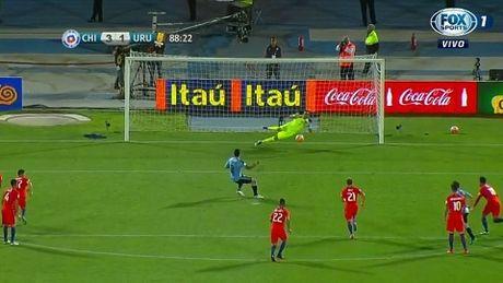Alexis Sanchez chan thuong van lap cu dup, sap di vao lich su Chile - Anh 5
