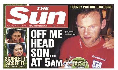 Rooney say ti bi, Mourinho chi biet da xoay FA - Anh 1