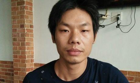 Chem nguoi gay thuong tich, dieu tra vien 'xin' khong khoi to? - Anh 1