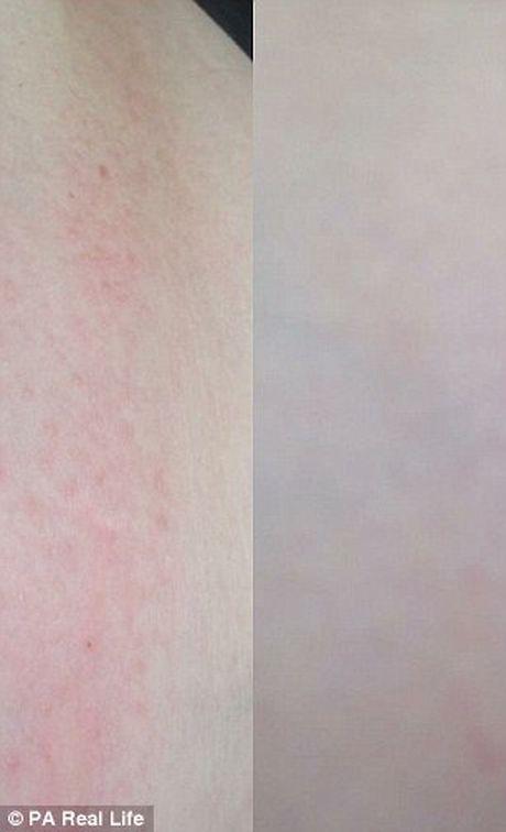 Bi quyet chua khoi eczema bang xa phong sua me - Anh 2