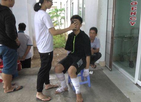Hau Giang: No binh gas mini, 10 hoc sinh bi bong - Anh 1