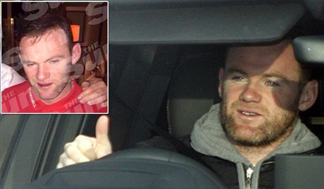 Say xin, Rooney bi tuoc bang doi truong tuyen Anh - Anh 1
