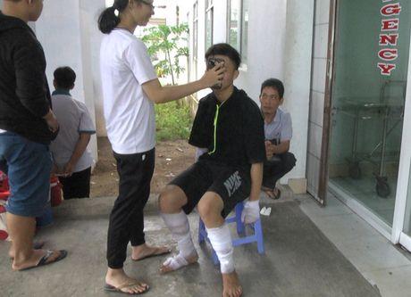 Binh gas mini phat no, nhieu hoc sinh bi thuong - Anh 1
