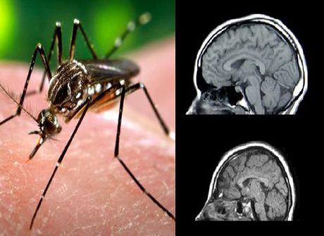 TP HCM: 16/24 quan, huyen co nguoi nhiem virus Zika - Anh 1