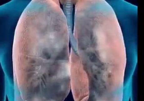 Hut thuoc la – thu pham gay benh COPD - Anh 2