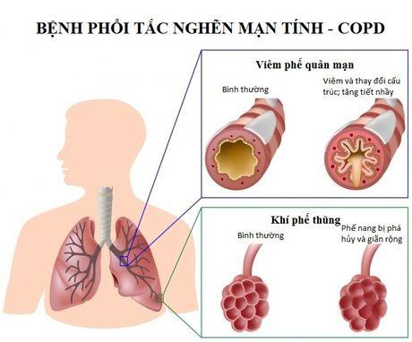 Hut thuoc la – thu pham gay benh COPD - Anh 3