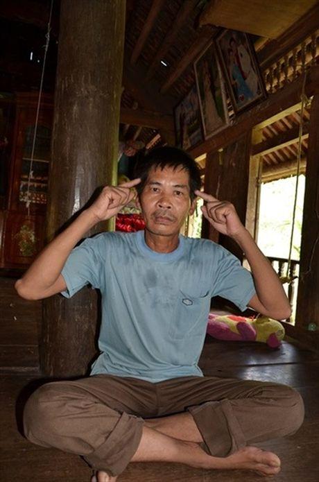 Van con do noi lo can benh la 'te te say say' phu len xom Muong - Anh 1