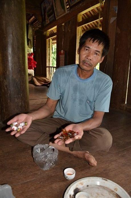 Van con do noi lo can benh la 'te te say say' phu len xom Muong - Anh 4