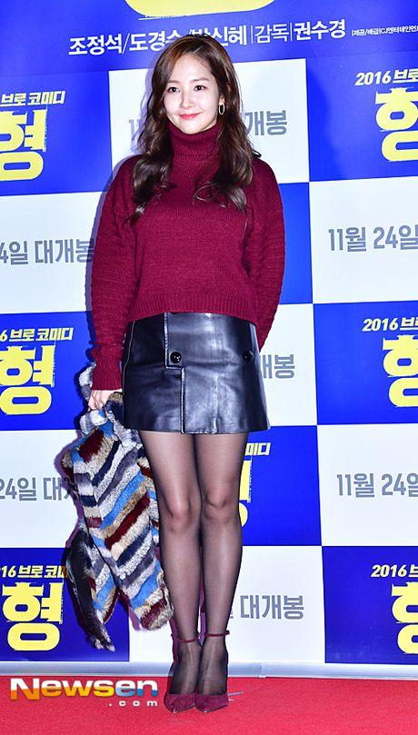Nguoi dep dao keo Park Min Young mum mim vi tang can - Anh 3