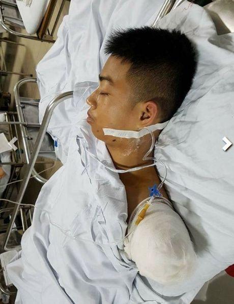 Chang trai Nghe An hy sinh canh tay cuu ban thoat chet - Anh 2