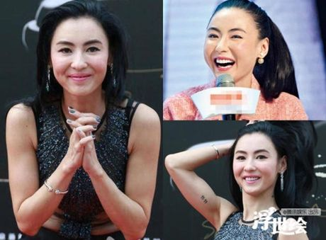 Nhung my nhan Hoa Ngu mat bien dang vi tiem botox - Anh 3