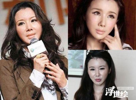 Nhung my nhan Hoa Ngu mat bien dang vi tiem botox - Anh 4