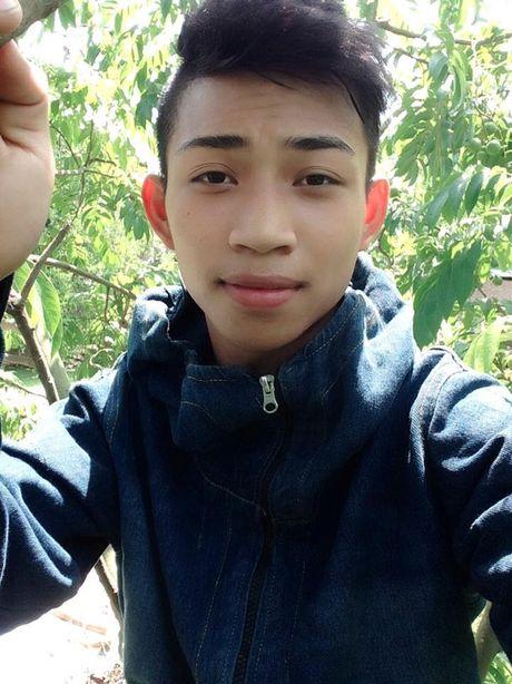 Kham phuc chang trai hy sinh mot canh tay de cuu song ban - Anh 3