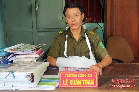 Xa than cuu nguoi, truong cong an xa Trung Son bi danh trong thuong - Anh 1