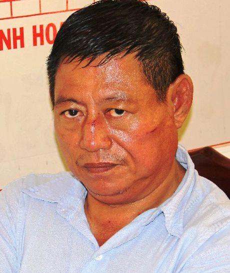 Truy to trung ta cong an Campuchia ban 2 nguoi - Anh 1