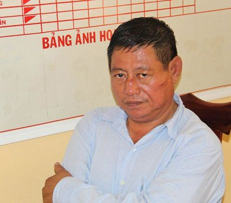 De nghi truy to Trung ta CA Campuchia ban chet nguoi - Anh 1