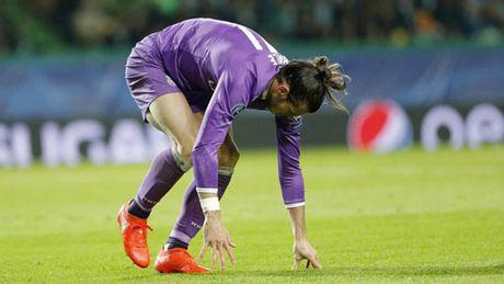 Tin xau cho Real: Bale chan thuong nang, nghi 4 thang - Anh 1
