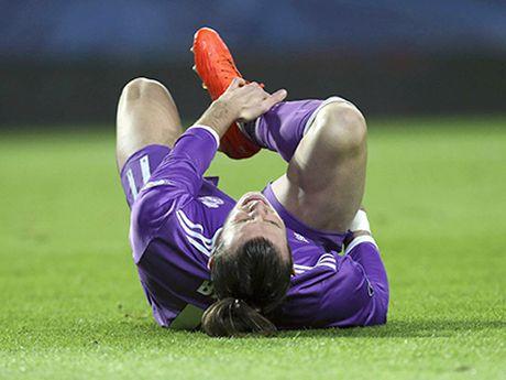 Gareth Bale nghi 2-3 thang: Con ai 'den' hon Zidane? - Anh 1