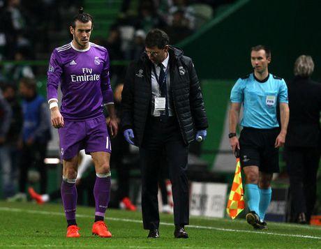 Ngoi ngoai 4 thang, Bale tran an nguoi ham mo - Anh 1