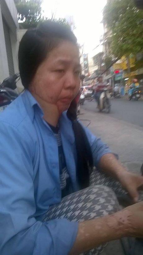 Nguoi dan ba va xe bi tat axit o Sai Gon: 3 nam mon moi tim cong ly - Anh 2