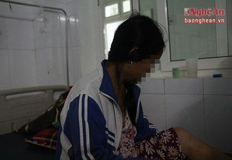 Bat hanh nhung phan doi lam canh bi bao hanh - Anh 3