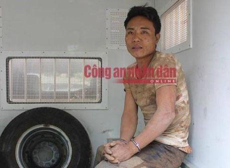 Tham an o Ha Giang: Nghi pham moi chua benh ve - Anh 2