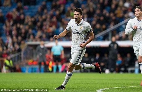 Cau ca Zidane ghi ban, Real Madrid thang lon tai Cup nha Vua - Anh 1