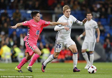 Cau ca Zidane ghi ban, Real Madrid thang lon tai Cup nha Vua - Anh 4