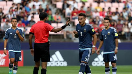 Cau thu U20 Argentina la 'nan nhan' dau tien cua cong nghe moi o World Cup U20 - Anh 2