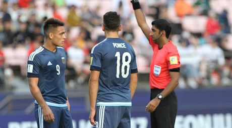Cau thu bi gay mui o Viet Nam bi the do ngay tran ra quan o U.20 World Cup - Anh 1