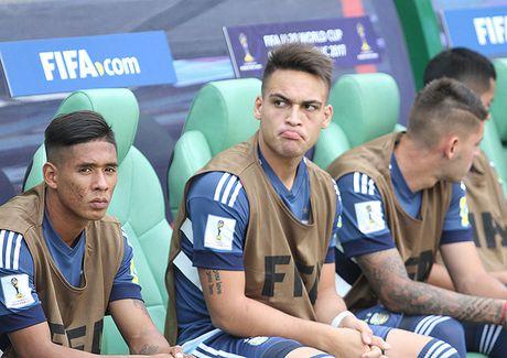 Cau thu bi gay mui o Viet Nam bi the do ngay tran ra quan o U.20 World Cup - Anh 3
