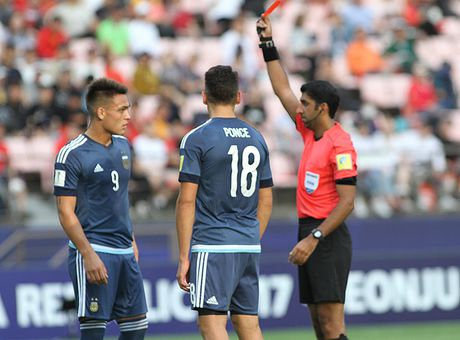 Cau thu bi gay mui o Viet Nam bi the do ngay tran ra quan o U.20 World Cup - Anh 8