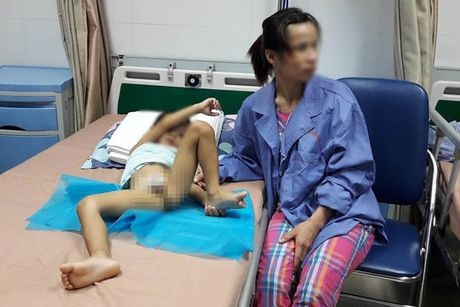 Hang chuc be trai bi sui mao ga o Hung Yen: Tiet lo 'dong troi' cua phu huynh - Anh 2