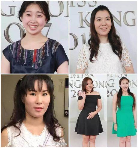 """Den luot Hoa hau Singapore bi che vi dan thi sinh """"xau khong do noi"""" - Anh 3"""