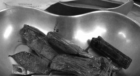 Bac sy phat hoang voi nhung thu duoc lay ra trong bung benh nhan - Anh 3