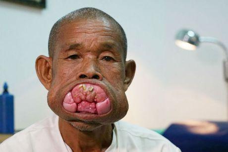 Cu ong Campuchia sau ca phau thuat bo nuou rang khong lo - Anh 1