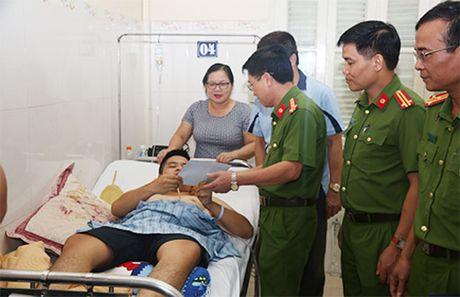 Tong cuc Canh sat tham hoi chien si Cong an bi thuong trong khi lam nhiem vu - Anh 1