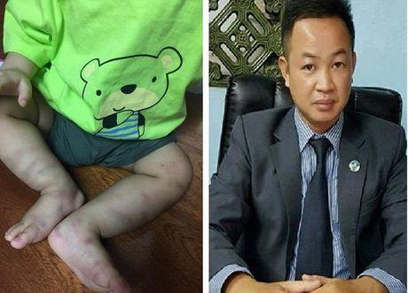 Vu be trai bi hanh hung da man: Hinh phat nao cho doi tuong bao hanh chau be den chan thuong so nao? - Anh 2