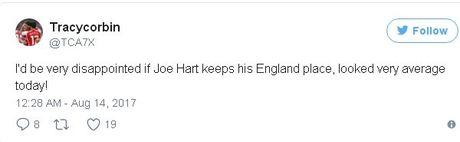 Joe Hart bi 'dan tinh' che toi ta khi de lot luoi 4 ban - Anh 1