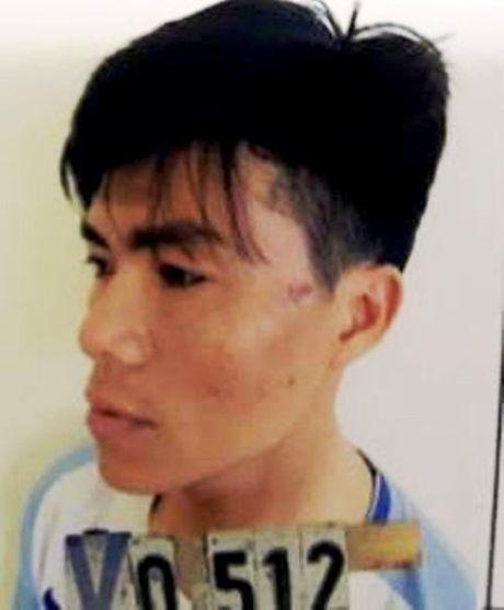Nghe An: Say ruou, lao vao chui boi roi dam vao mat CS co dong - Anh 1