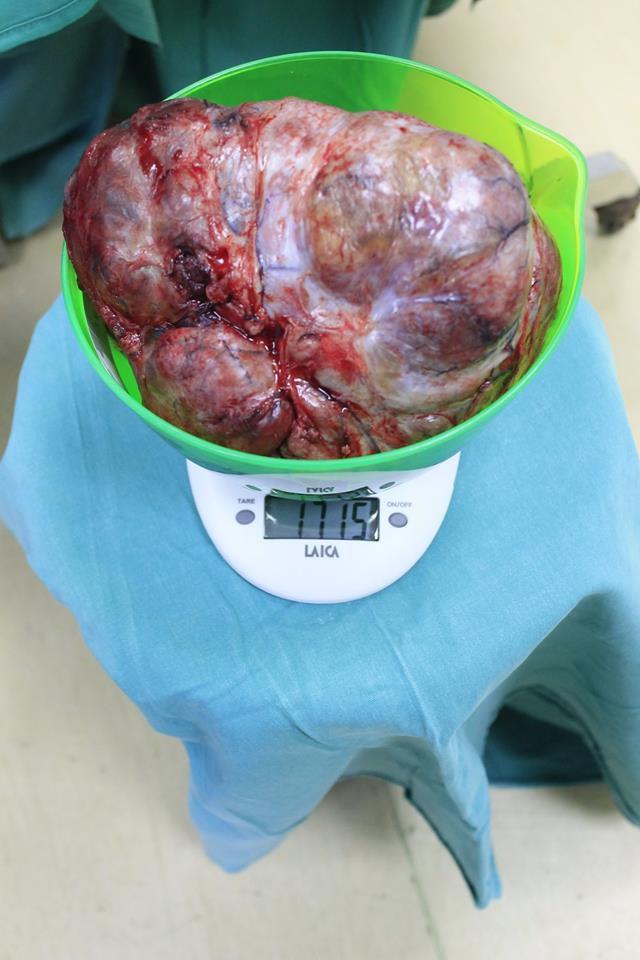Cắt khối u ngực nặng gần 2kg cho người phụ nữ khốn khổ Ảnh 2
