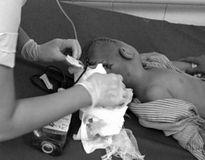 Gửi ở trường mầm non, cháu bé 3 tuổi bất ngờ bị chảy máu não