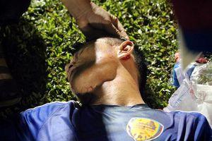 Cầu thủ Quảng Nam đổ máu ở trận hòa HAGL